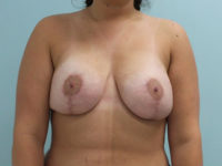 Augmentation & Mastopexy